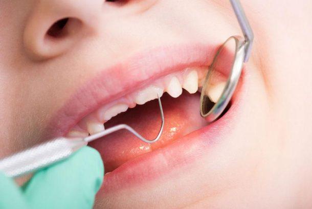 Dental Care For Special Needs Children